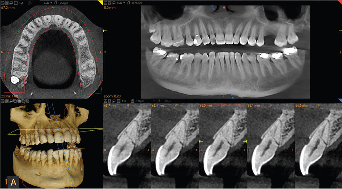 Dental CBCT Scan