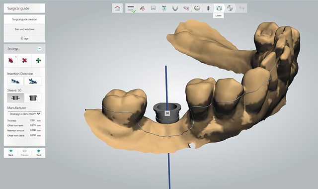 Dental Implant Guide Design
